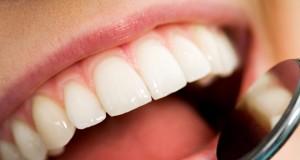στόμα ασθενή, επίσκεψη στον οδοντίατρο